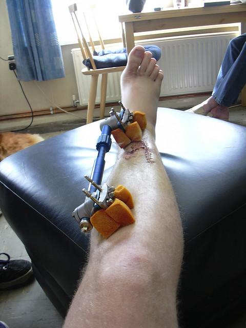 my broken leg | Flickr - Photo Sharing!