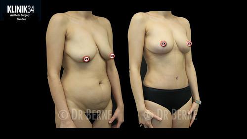 bröstlyft klinik34 facebook.001