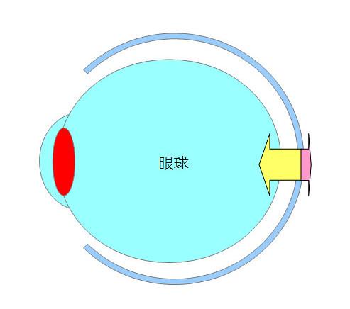 屈折性近視・軸性近視になるプロセスとメカニズム(パターン2)05
