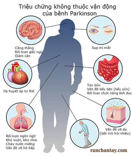 Dấu hiệu sớm của bệnh Parkinson không thuộc triệu chứng vận động