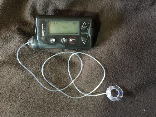The Price of being Diabetic: Insulin Pump