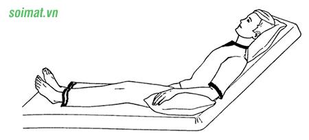 Người bệnh sỏi mật nằm theo tư thế Fowler để giảm đau sau phẫu thuật