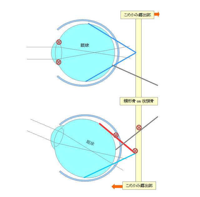 利き目スイッチングのメカニズム図解〜利き目が様々な弊害を引き起こす根本要因になるメカニズム〜屈折性近視・軸性近視になるメカニズム/眼精疲労・頭痛を誘発するメカニズム/片目だけ視力が低下するメカニズム