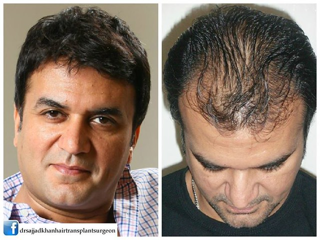 Hair Transplant Permanent Solution Hair Loss Problems