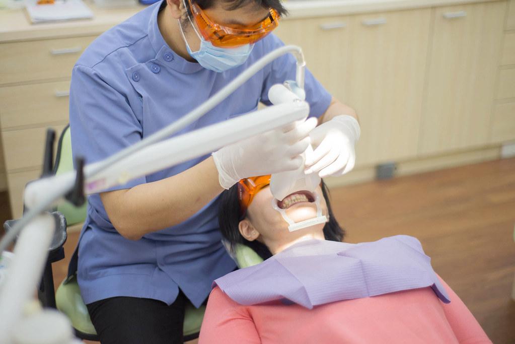 黃牙退散!到高雄人本自然牙醫診所做牙齒冷光美白還我一口自信白牙 (17)