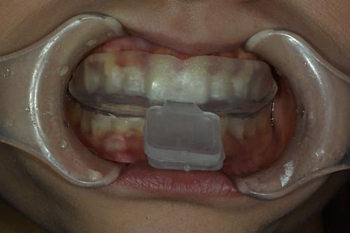 如何避免牙齒美白造成不適?那些權泓牙醫黃泓傑醫師教我的事 (12)