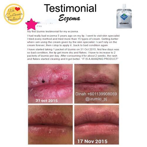 testimonial - eczema on lips copy