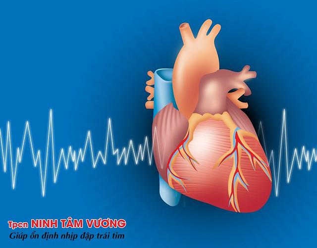 Rối loạn nhịp tim xảy ra khi tim đập nhanh, chậm, hoặc không đều