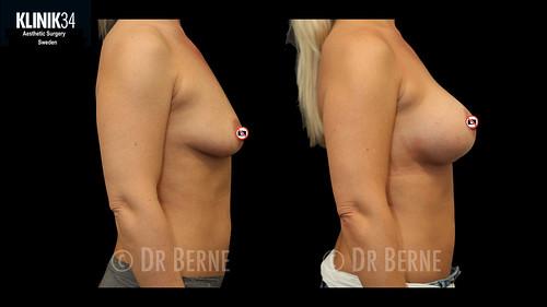 bröstlyft klinik34 facebook.021