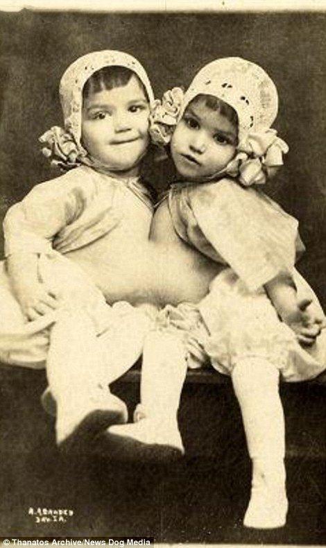 19 世紀流行的人類畸形秀 FREAKSHOW20