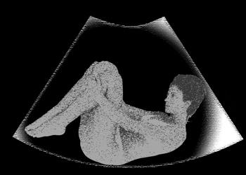 утроба