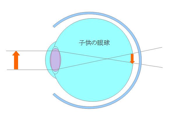 子供の眼球(遠視)(2)