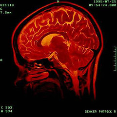 font, medical, illustration, brain, organ,