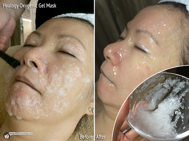 Skin Science Hyalogy Oxygenic Gel Mask