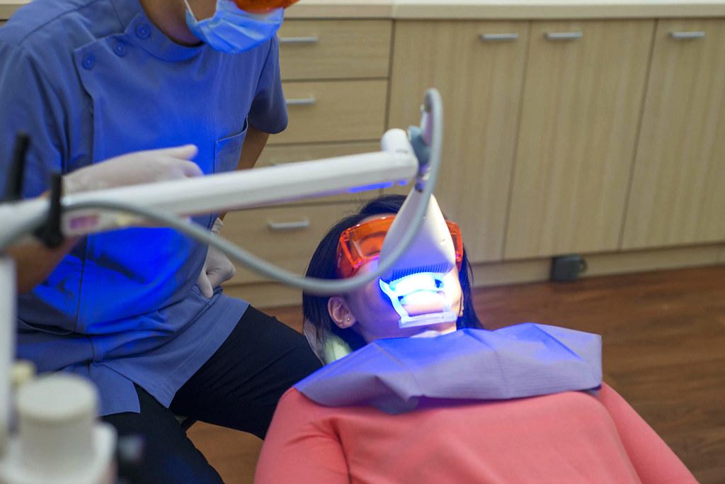 黃牙退散!到高雄人本自然牙醫診所做牙齒冷光美白還我一口自信白牙 (23)