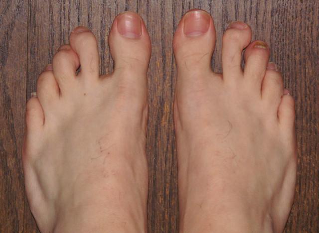 feetstartingpoint