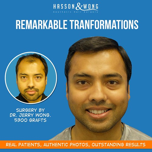 hair-transplant-before-and-after-results-gallery-fb