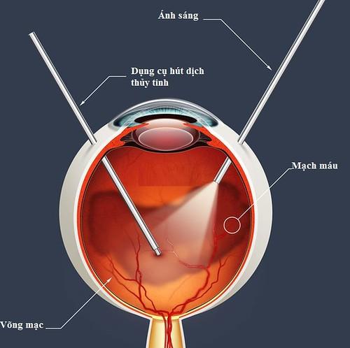 Phẫu thuật Vitrectomy được áp dụng khi màng bồ đào bị viêm nặng