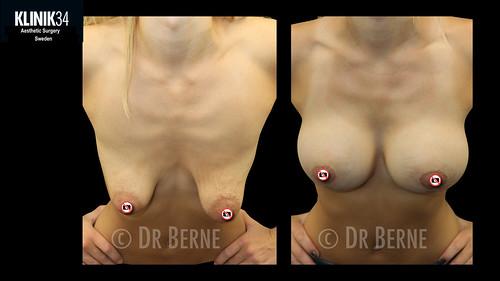bröstlyft klinik34 facebook.018