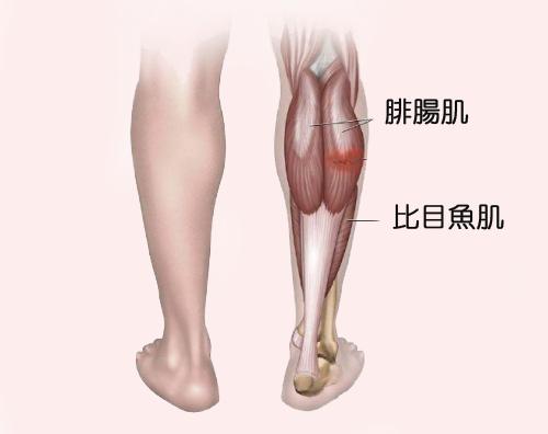 [高雄] 去去脂肪走|抽脂Q&A懶人包|高雄美妍醫美診所推薦分享_小腿示意圖