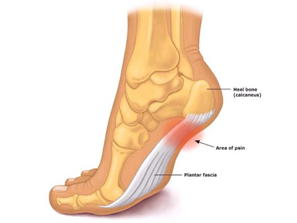 A lump on the heel: how to treat and what to do 26