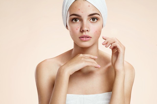 Dr. Joel Schlessinger discusses acne and hyperpigmentation with HerLife Beauty.