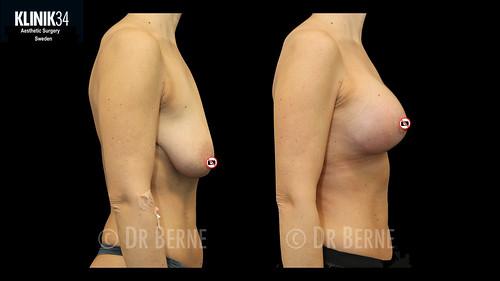 bröstlyft klinik34 facebook.013