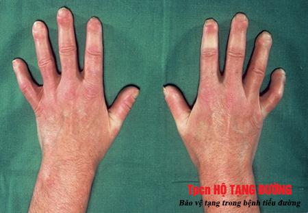 Biến chứng xơ cứng ngón tay khiến người bệnh ĐTĐ khó cử động