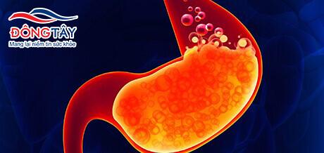 Trào ngược dạ dày và bệnh tim mạch