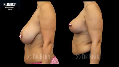 bröstlyft klinik34 facebook.006