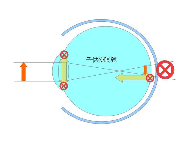 近視になるメカニズムを眼の構造から探るシリーズ02(成長期編)(5)