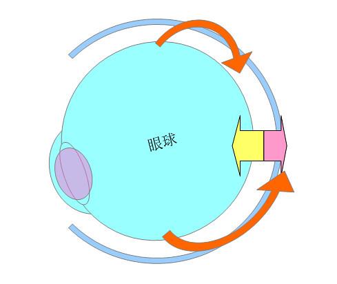 屈折性近視・軸性近視になるプロセスとメカニズム(パターン2)02
