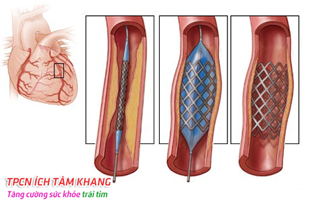 Phương pháp nong động mạch và đặt stent giúp máu lưu thông dễ dàng