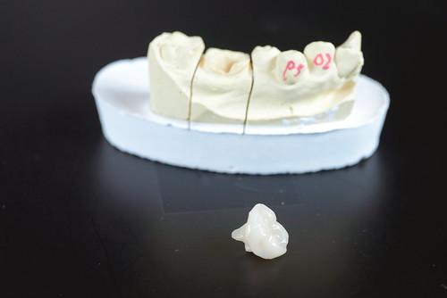 [台南] 用陶瓷補蛀牙!?佳美牙醫真是高科技 (2)