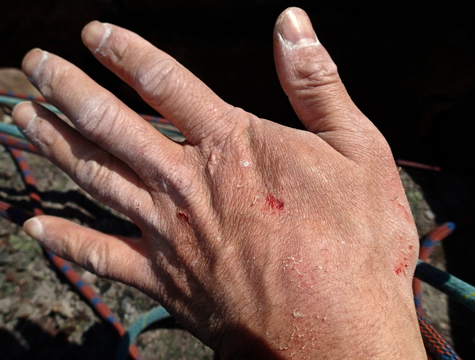 Wrecked hand