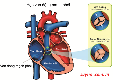 Van động mạch phổi mở không hết do hẹp