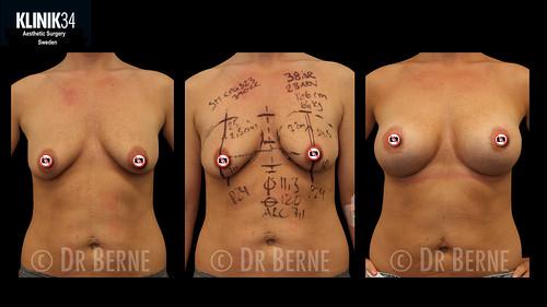 bröstlyft klinik34 facebook.019