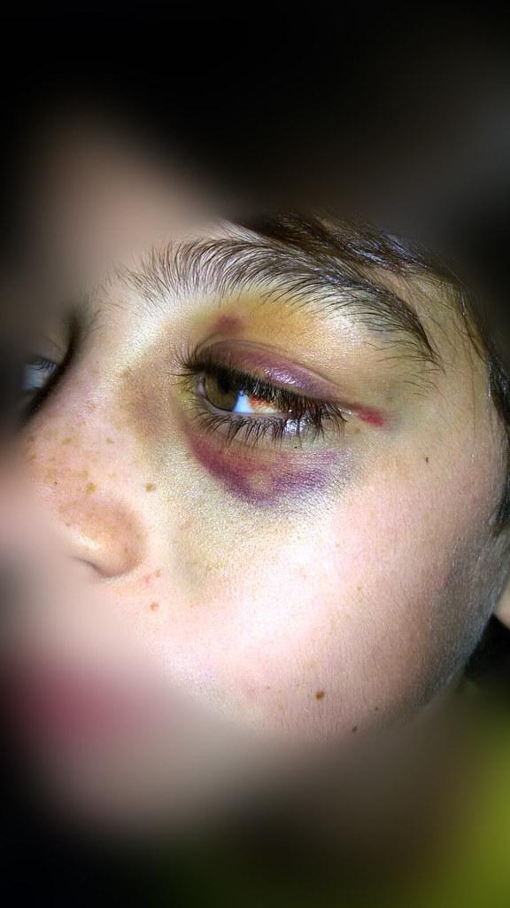 Rutigliano-Violenza e bullismo Aggredito da ignoti all'uscita da scuola  (2)