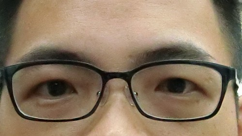 [心得] 高度近視併發症-白內障.. (6)