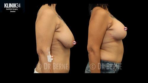 bröstlyft klinik34 facebook.032
