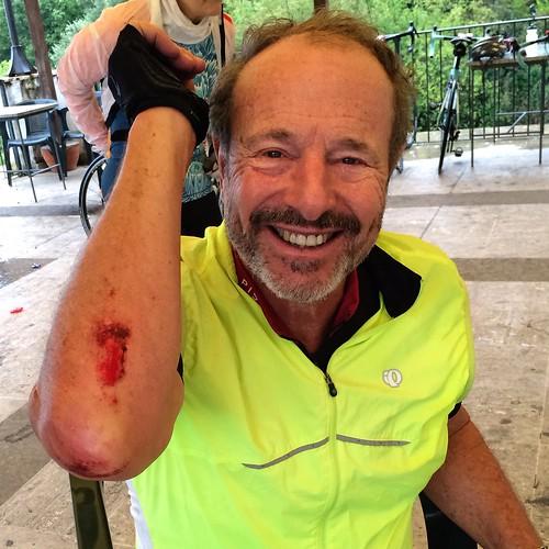 Milton and road rash