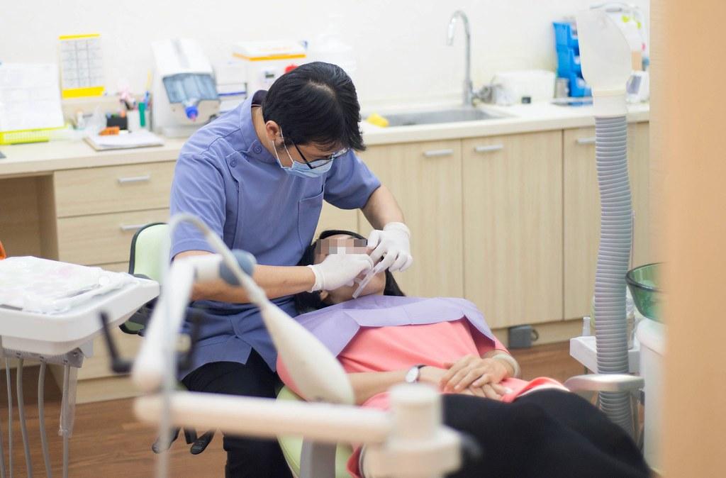黃牙退散!到高雄人本自然牙醫診所做牙齒冷光美白還我一口自信白牙 (10)