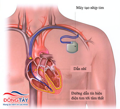 Hoạt động của máy tạo nhịp tim