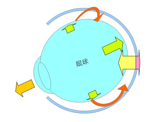 屈折性近視・軸性近視になるプロセスとメカニズム(パターン2)04