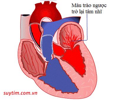 Hình ảnh máu bị phụt ngược trở lại buồng tâm nhĩ khi van hai lá bị hở