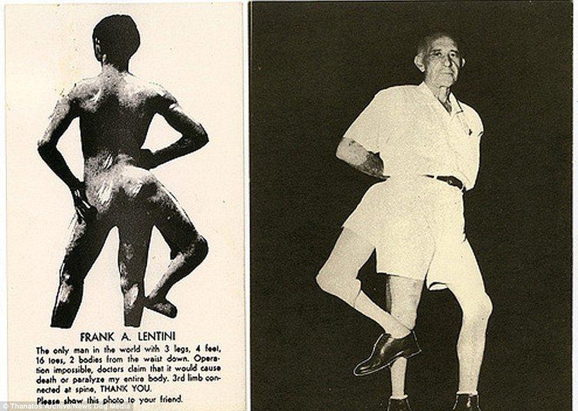 19 世紀流行的人類畸形秀 FREAKSHOW5