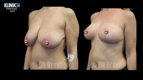 bröstlyft klinik34 facebook.009