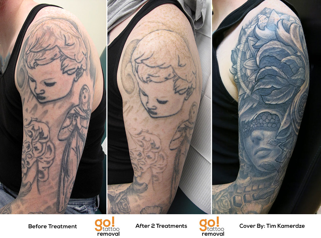 Tattoo removal to tattoo cover up go tattoo removal for How to cover tattoos