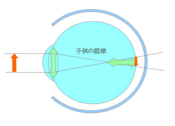 近視になるメカニズムを眼の構造から探るシリーズ02(成長期編)(2)