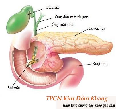 Sỏi mật kẹt lại ở ngã ba đường mật, tụy gây biến chứng viêm tụy cấp